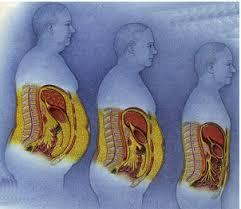 Canan Karatay- Karaciğer Yağlanması